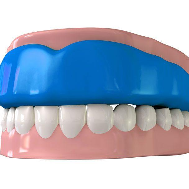 Protecteur buccal (ou protège-dent)