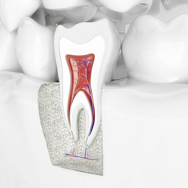 Endodontie (traitement de canal)